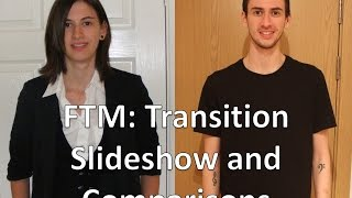 getlinkyoutube.com-FTM Transgender: Transition montage and comparisons -  Around 4 years
