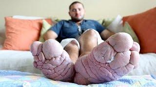 "getlinkyoutube.com-""Please Amputate My Size 16 Foot"""