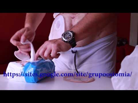 Cambio bolsa de colostomia