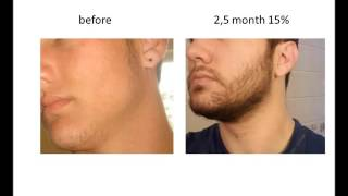 getlinkyoutube.com-Stimulate Beard Growth with Minoxidil  Before & After