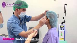 "getlinkyoutube.com-ทำตา 2 ชั้นเลเซอร์ "" Beauty Eye Shape by laser ""  โรงพยาบาลเลอลักษณ์"
