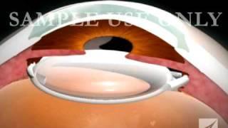 getlinkyoutube.com-Eye Surgery- Cataract with Lens Replacement