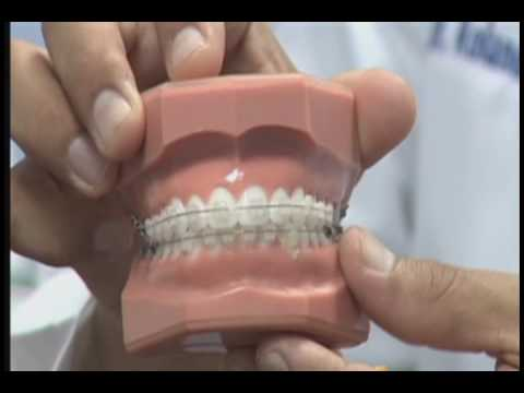 Tipos de bracketts o braces.wmv