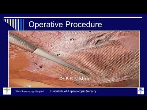 Dr R K Mishra's Lecture on Laparoscopic Repair of Ventral Hernia