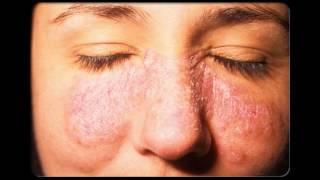 getlinkyoutube.com-Enfermedades de la piel