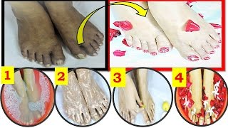 Instantly Remove TAN SPOT and get WHITENING FEET just 4 step / Pedicure at Home in Hindi