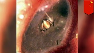 getlinkyoutube.com-Wanita mengira kerasukan, ternyata Laba-laba membuat sarang di dalam telinganya! - TomoNews