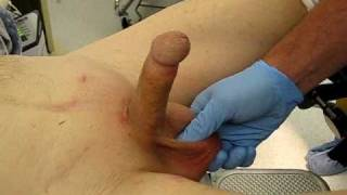 getlinkyoutube.com-Inflation and deflation of penile implant