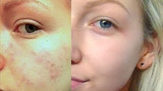 getlinkyoutube.com-How I Cleared My Skin! | Updated Skin Care Routine