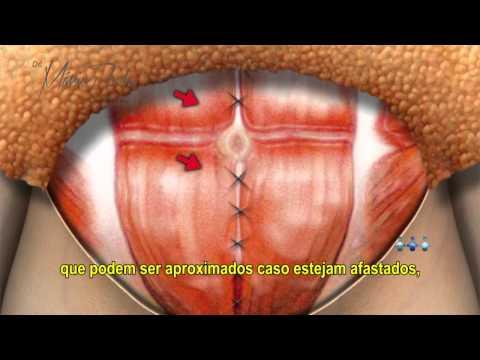 Abdominoplastia - Cirurgia Plástica do Abdome