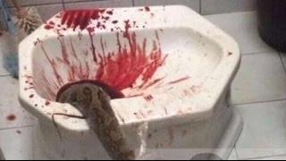getlinkyoutube.com-Pitón sale del váter y le muerde en el pene