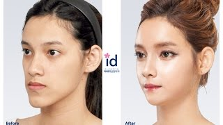 getlinkyoutube.com-id hospital : Let Me In 4 in Thailand, Korea Plastic Surgery, ศัลยกรรมเกาหลี, ศัลยกรรมเกาหลีของคนไทย