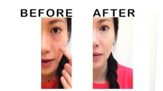 getlinkyoutube.com-How to conceal dark circles and bags