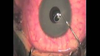 getlinkyoutube.com-Complications of Cosmetic Iris Implants & Surgical Removal Technique