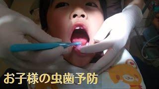 常磐線沿線/湯本・中央台・常磐で子供の虫歯(むし歯)予防なら にいつま歯科<フッ素塗布3>