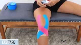 EX9 Kinesiology Tape:  Patella Knee Pain