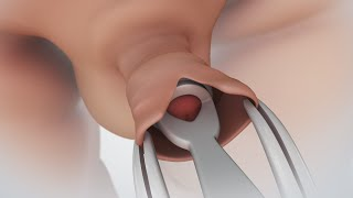 getlinkyoutube.com-Circumcision | Nucleus Health