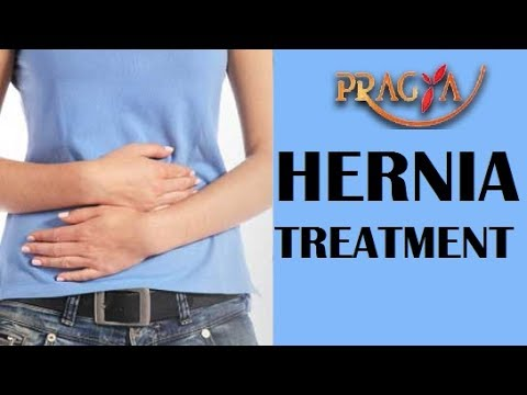 How To Cure Hernia | Dr. Manorama Singh (Gynecologist)