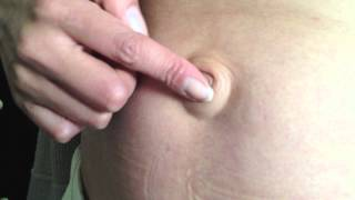 getlinkyoutube.com-Reducible Umbilical Hernia