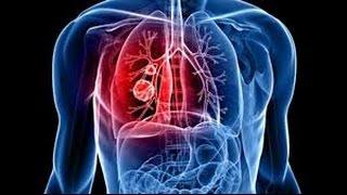 Cancer du poumon : signes