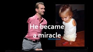 Story of the man without limbs, Nick Vujicic