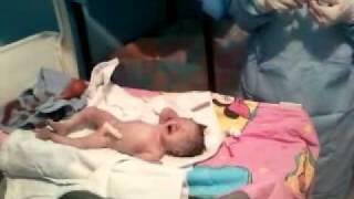 getlinkyoutube.com-Nacimiento de 34 semanas, Silvia Daniella Barrios Cárdenas