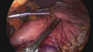getlinkyoutube.com-Vertical sleeve gastrectomy procedure from www.lapsf.com