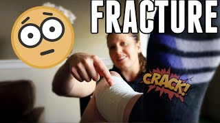 *I Fractured My Leg!* | Safety Squat Bar