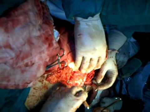 laprotomy of stab wound by dr shahid sohail in dhq jhelum part 2