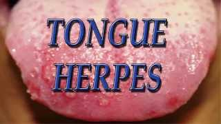 getlinkyoutube.com-Tongue herpes - Herpes on Tongue, Tongue herpes cure