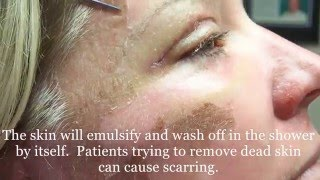 getlinkyoutube.com-Peeling Skin  from 30% TCA peel