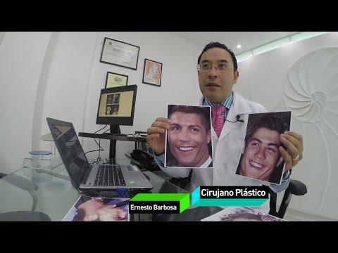 Las cirugías que transformaron a Cristiano Ronaldo