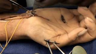 getlinkyoutube.com-Median Nerve Repair