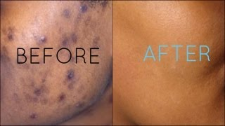 getlinkyoutube.com-Dark Spots Fade Away | Remove Dark Spots Extract White Heads