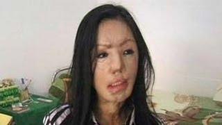 getlinkyoutube.com-Lisa Nur Jazilah Wanita Yang disiram Air Keras Sekarang Sudah Cantik