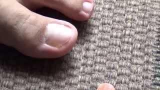 getlinkyoutube.com-Destruir hongos en uñas de pies y manos en sólo 6 semanas con Dióxido de Cloro PLACITUM