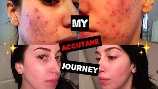 getlinkyoutube.com-My Accutane Journey | 6 Months in 5 Minutes