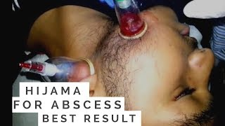 getlinkyoutube.com-Al Hijama for Abcess on face by Dr.Saleem