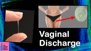 getlinkyoutube.com-Vaginal Discharge │ What is Normal, What is Abnormal