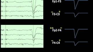 getlinkyoutube.com-Eye Movements on EEG
