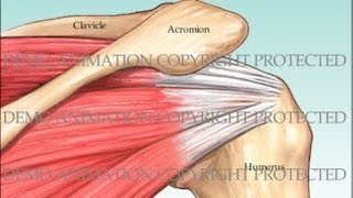 getlinkyoutube.com-Rotator Cuff Repair and Subacromial Decompression