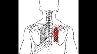 Pain Between the Shoulder Blades from Rhomboid Muscle Trigger Points: Referred Pain Patterns