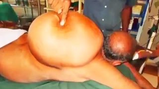 getlinkyoutube.com-40-Pound Back Cyst, Largest Lipoma on Planet Earth