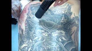 getlinkyoutube.com-刺青除去(広範囲)途中経過  Laser Tattoo Removal (Large Tattoo) Interim report