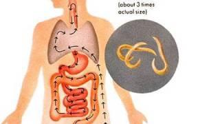 getlinkyoutube.com-Top 10 Weirdest Diseases
