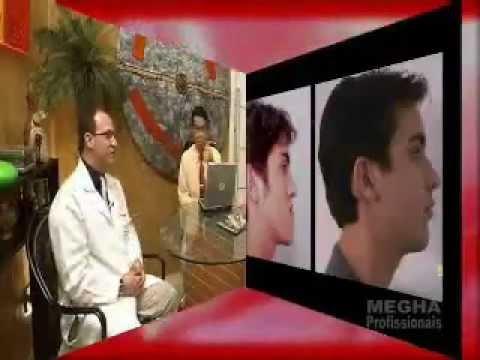 Entrevista sobre Cirurgia Buco Maxilo Facial - parte 2