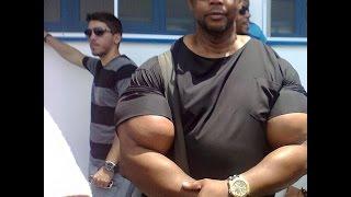 Synthol brazilian big arms (Tony)