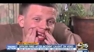 getlinkyoutube.com-POLICE BRUTALITY -  Phoenix Cop Smashes Teen's Teeth In & Now Begs For His Job Back