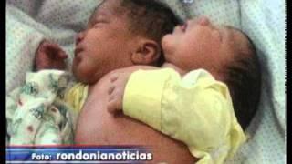 getlinkyoutube.com-Bebê Nasce Com Duas Cabeças no Pará  21 12 2011