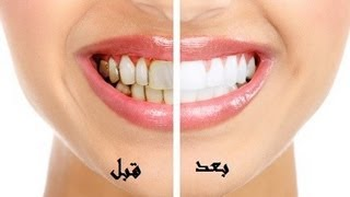 getlinkyoutube.com-أفضل وأسرع طريقة لتبييض الاسنان وازالة رائحة الفم مضمونة وغير مكلفة وطبيعية